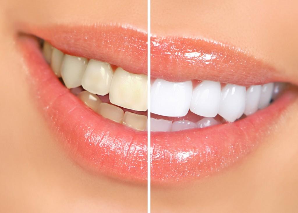 7 Mitos Sobre Clareamento Dental Saude Fortaleza